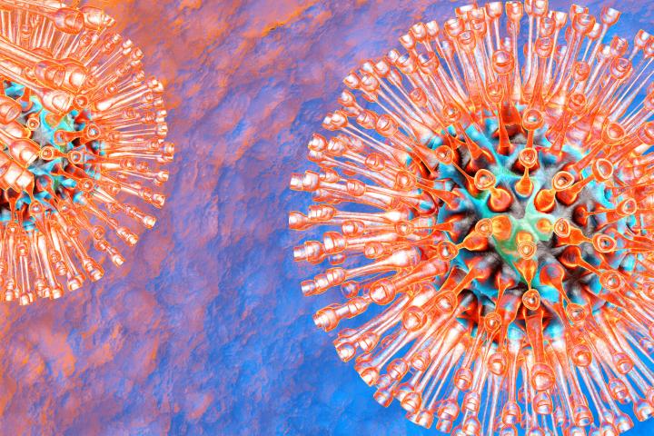 Geneproof Herpes Simplex Virus 1 Hsv 1 Pcr Testing